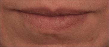 Lip Filler Patient